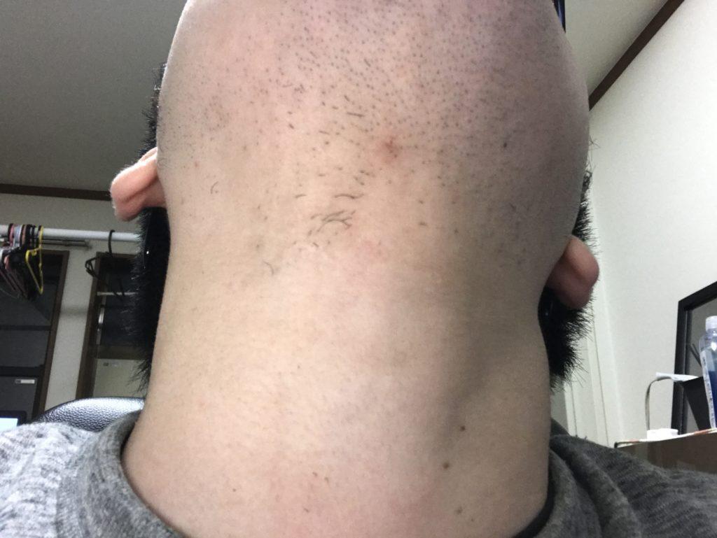 剃り 残し ひげ